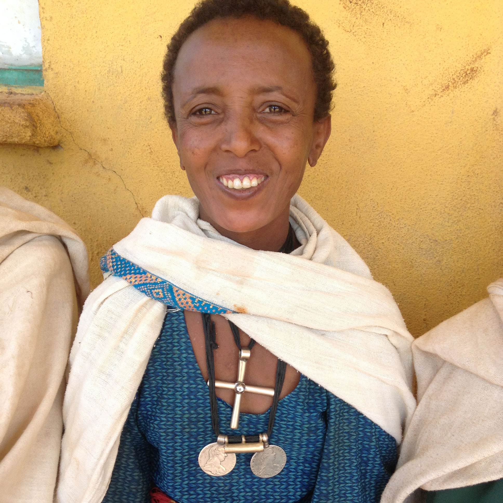 Deberie, podo patient on her first day of treatment